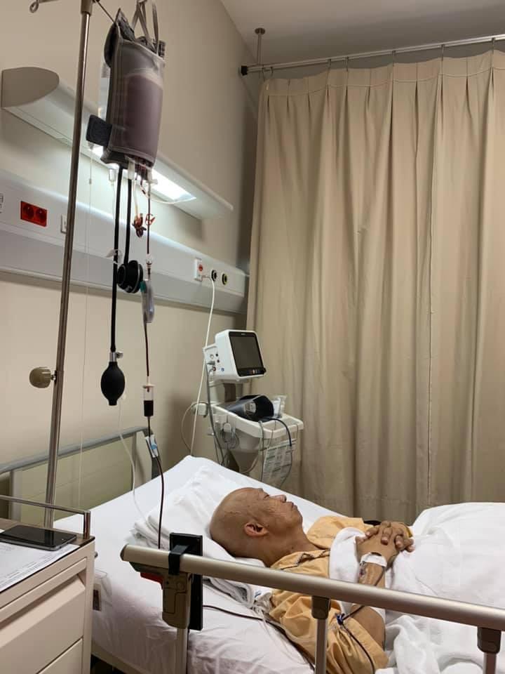 Không nhận ra nhạc sĩ Xuân Hiếu thư sinh ngày nào với hình ảnh đầu trọc lốc, da sạm màu vì xạ trị ung thư-1