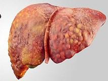 4 biểu hiện nhỏ trên cơ thể cảnh báo gan nhiễm đầy chất độc, ngày càng yếu ớt, suy nhược