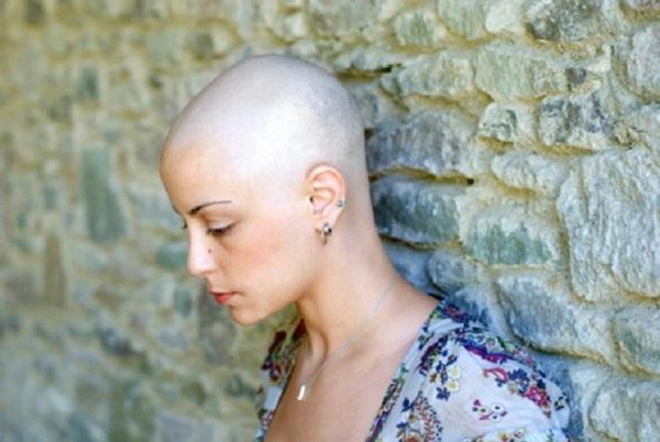 Bị ung thư vú nên phải hóa trị rụng hết tóc, còn ốm yếu không đi làm được, người phụ nữ rụng rời chân tay khi nghe tin... bác sĩ nhầm-2