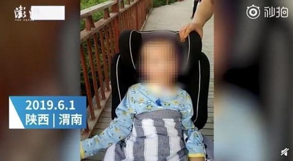 Bé 6 tuổi bị mẹ kế đánh tới nát sọ, gãy xương sườn, bố bỏ mặc vì sợ tốn tiền-2