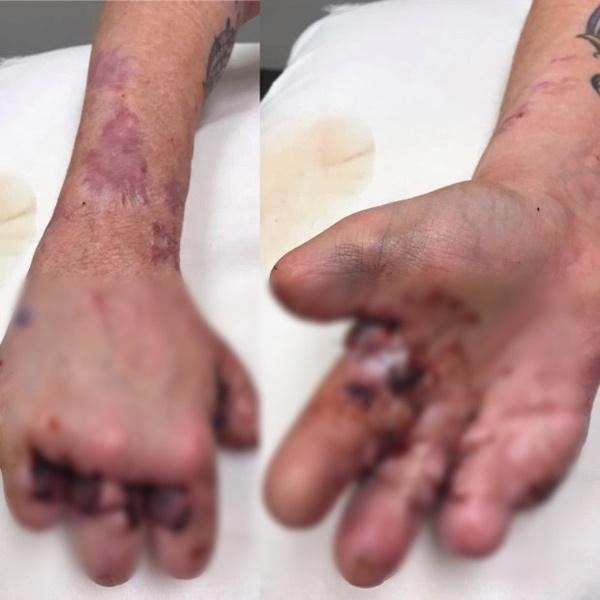 Bị cụt hết ngón chân, vài ngón tay sau biến chứng kinh khủng của căn bệnh mà hầu như ai cũng từng bị nhưng lại rất coi thường-2