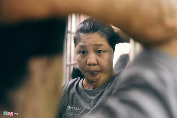 Uẩn khúc trong vụ người phụ nữ bị tạt axit 5 năm không tìm ra hung thủ-4