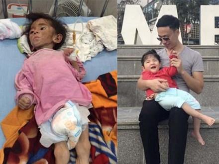 Hình ảnh mới nhất của em bé Lào Cai bị suy dinh dưỡng sau 3 năm về với mẹ nuôi khiến nhiều người ngạc nhiên