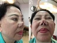 Người phụ nữ 3 năm bị biến dạng mặt vì sửa mũi thất bại: 'Ra đường ai cũng gọi tôi là quỷ dạ xoa'