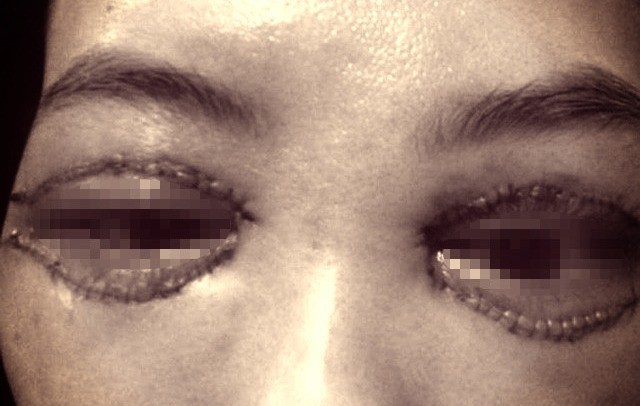 Cắt mí giúp mắt đẹp hơn nhưng làm không đúng bước này thì dễ rơi vào cảnh mắt xếch, mắt trợn ngược-2