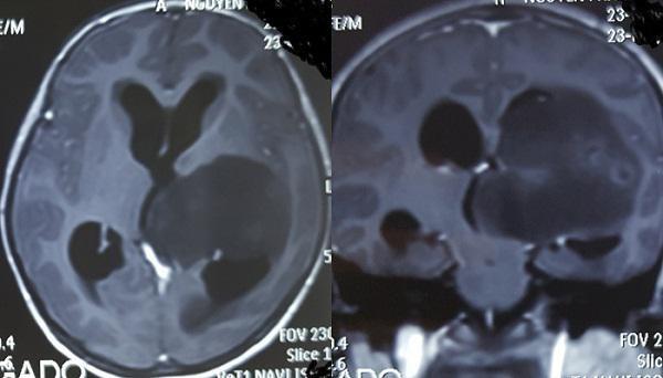 Con bị u não, mẹ đưa về ăn rau 2 tháng để triệt khối u và cái kết bất ngờ-1