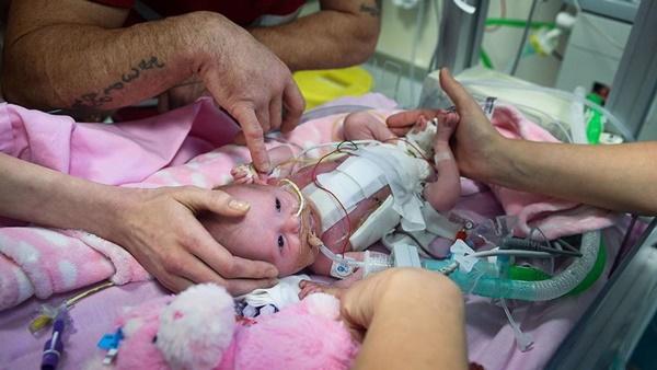 Bé gái mắc hội chứng tim ngoài lồng ngực chỉ có 10% sống sót, bố mẹ em quyết định làm việc này và điều kì diệu xảy ra-2