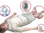 10 mẹo sơ cứu nhất định phải biết, có thể giúp bạn thoát chết trong gang tấc-11