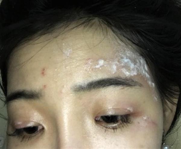 Sinh viên ký túc xá khốn khổ vì kiến ba khoang-2