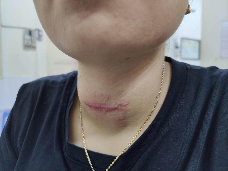 Tự chữa bệnh về tuyến giáp bằng phương pháp thầy lang, cô gái Hải Phòng bị nhiễm trùng nghiêm trọng vùng cổ-2