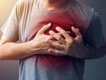 Chàng trai 28 tuổi bị nhồi máu cơ tim cấp tính sau khi uống chai nước đá-5