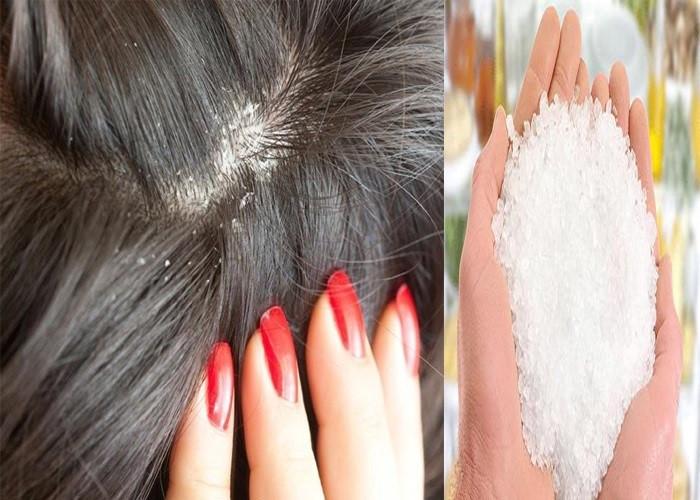 Đổ 1 muỗng này vào dầu gội, tóc óng mượt bồng bềnh, không còn bóng dáng của gàu lại thơm mát bất ngờ-2