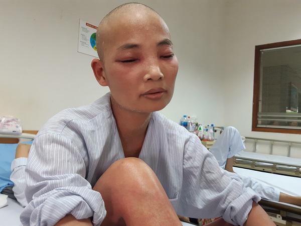Mẹ ung thư người đỏ như tôm luộc, chỉ ước có đủ 1,4 triệu đồng để con không thất học-5