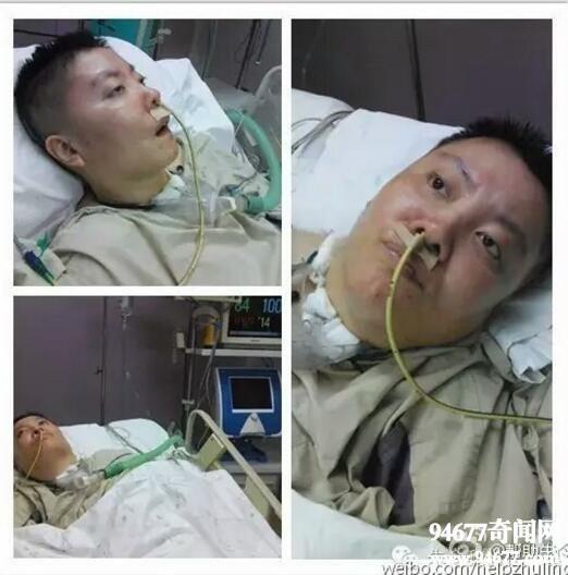 Vụ đầu độc bí ẩn chấn động Trung Quốc: Cô sinh viên ưu tú bỗng chốc trở thành đứa trẻ bại liệt, sau 25 năm vẫn không bắt được kẻ hạ độc-6