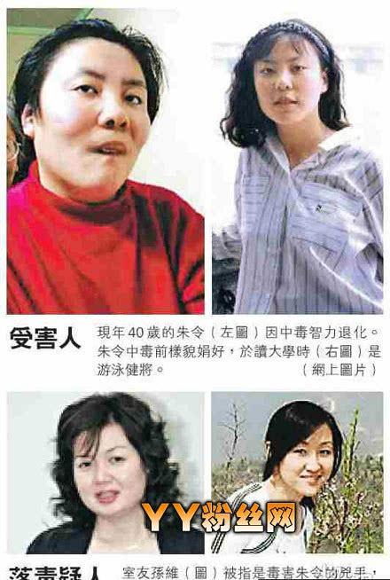 Vụ đầu độc bí ẩn chấn động Trung Quốc: Cô sinh viên ưu tú bỗng chốc trở thành đứa trẻ bại liệt, sau 25 năm vẫn không bắt được kẻ hạ độc-8