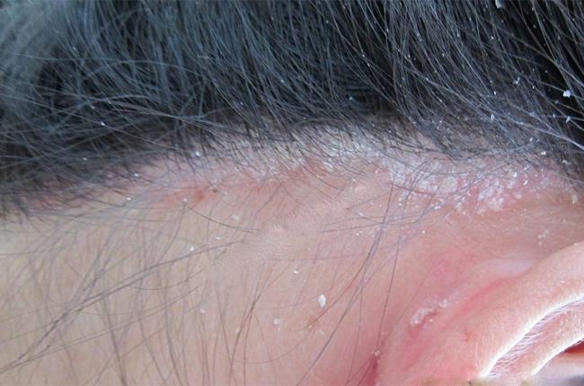 Trẻ đi bơi mùa hè, bác sĩ nhắc cẩn thận để không mắc 3 căn bệnh ngoài da thường gặp-3