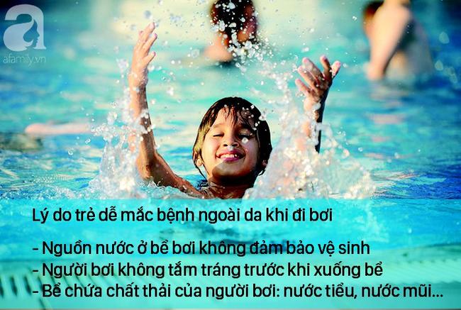 Trẻ đi bơi mùa hè, bác sĩ nhắc cẩn thận để không mắc 3 căn bệnh ngoài da thường gặp-1