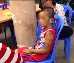 Vụ người phụ nữ và bạn tình đồng tính bạo hành con: Bé trai bị tra tấn hằng ngày bằng tay chân, cán chổi-2