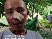 Vụ 3 cha con bị truy sát thương vong: Lời kể của nạn nhân