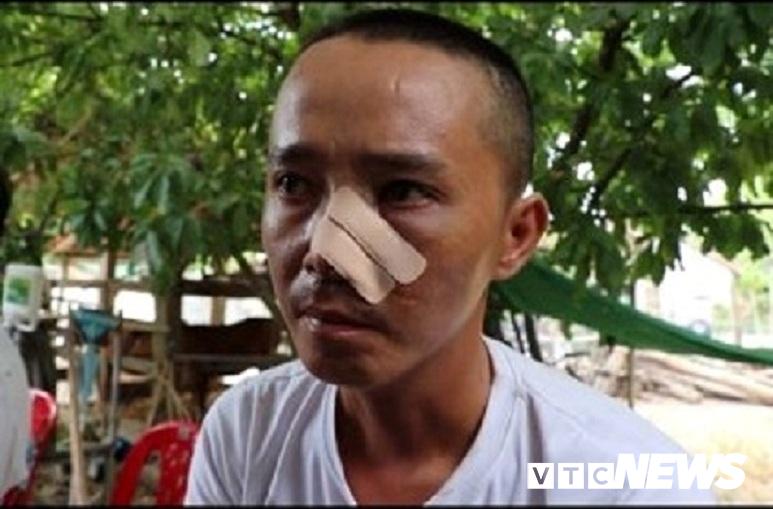 Ba cha con bị 20 người truy sát: Nạn nhân phẫn uất kể 3 trận đánh trong một buổi chiều-1