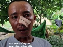 Ba cha con bị 20 người truy sát: Nạn nhân phẫn uất kể 3 trận đánh trong một buổi chiều