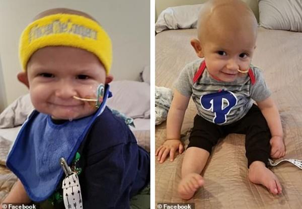 Thấy đầu con bắt đầu nghiêng nhẹ sang phải, bố mẹ không ngờ con trai 3 tháng tuổi bị bệnh ung thư nghiêm trọng đến thế-2