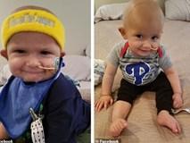 Thấy đầu con bắt đầu nghiêng nhẹ sang phải, bố mẹ không ngờ con trai 3 tháng tuổi bị bệnh ung thư nghiêm trọng đến thế