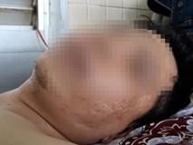 TP.HCM: Bệnh nhân bị gãy đốt sống lưng nhưng bác sĩ lại... khoan cẳng chân