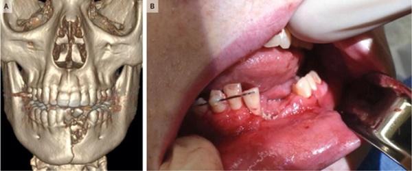 Thuốc lá điện tử phát nổ trong miệng, cậu bé 17 tuổi bay răng, gãy đôi xương hàm-1