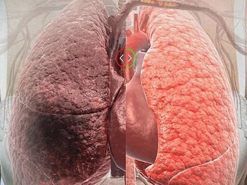 5 loại thực phẩm thanh lọc phổi: Ăn một bữa phổi khoẻ một năm, rất ít người biết cái số 5-1