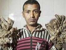 'Người cây' xin được cắt cụt tay sau 25 ca phẫu thuật đau đớn