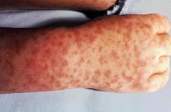 10 thay đổi trên da tố cáo bạn đang mắc bệnh, càng để lâu càng nguy hiểm đến tính mạng-1