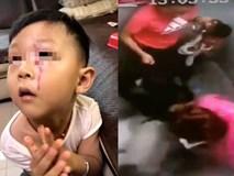Bé trai bị chó khổng lồ tấn công trong thang máy