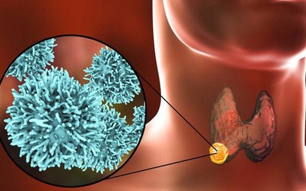 13 tuổi mắc ung thư tuyến giáp: BS cảnh báo bệnh liên quan tới thói quen ăn thiếu chất-1