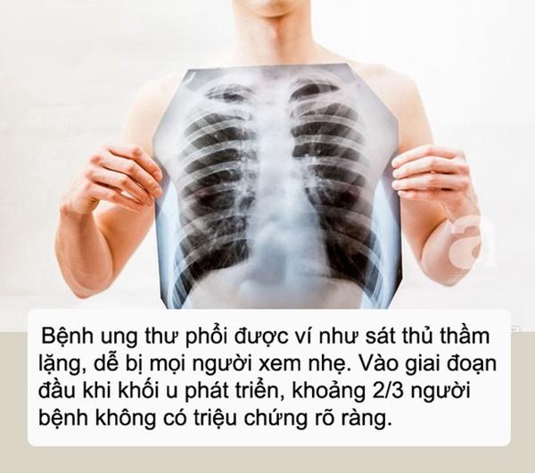 Ho kéo dài, chàng kiến trúc sư 27 tuổi chủ quan bỏ qua, đến lúc đau ngực mới đi khám thì đã bị ung thư phổi-1