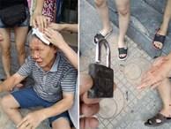 Hà Nội: Đưa cháu xuống chơi ở sân chung cư, người ông bị ổ khóa rơi trúng đầu gây thương tích