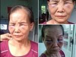 Con dâu đánh mẹ chồng bầm tím mắt ân hận xin lỗi nhưng vẫn chưa được đồng ý cho về ở chung nhà-2