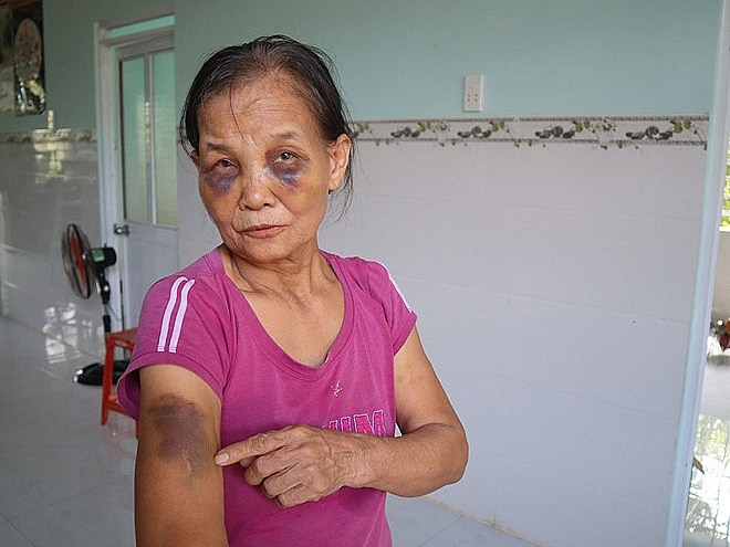Con dâu đánh mẹ chồng bầm tím mắt ân hận xin lỗi nhưng vẫn chưa được đồng ý cho về ở chung nhà-1