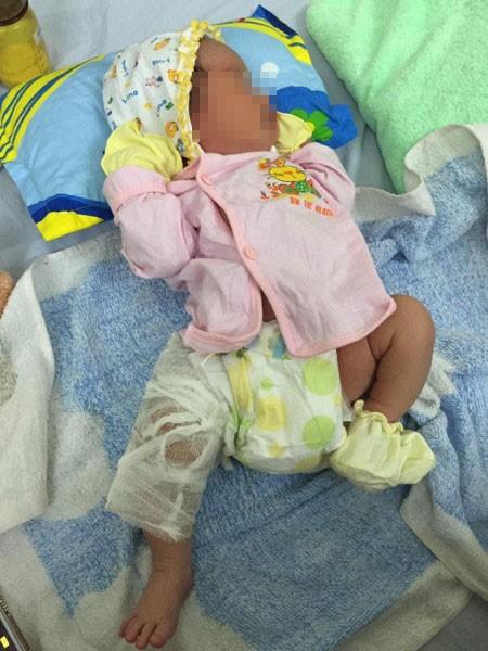 Những trẻ chào đời bị rách mặt, gãy chân tay do lỗi bác sĩ khiến các mẹ bầu hết hồn, nhiều trường hợp bác sĩ giải thích khó nghe-2