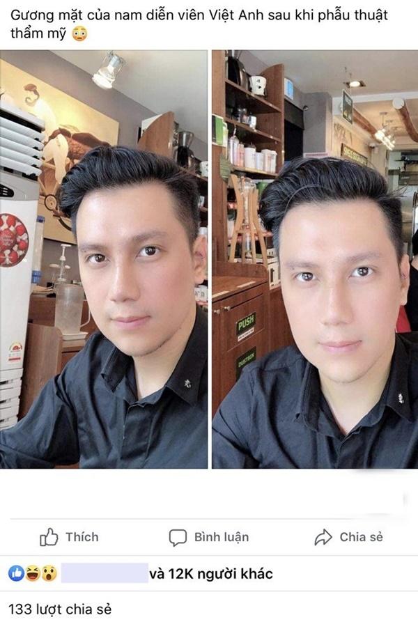 Dàn sao hoang mang với gương mặt lạ hoắc của Việt Anh, lời Dương Yến Ngọc phán gây chú ý-1