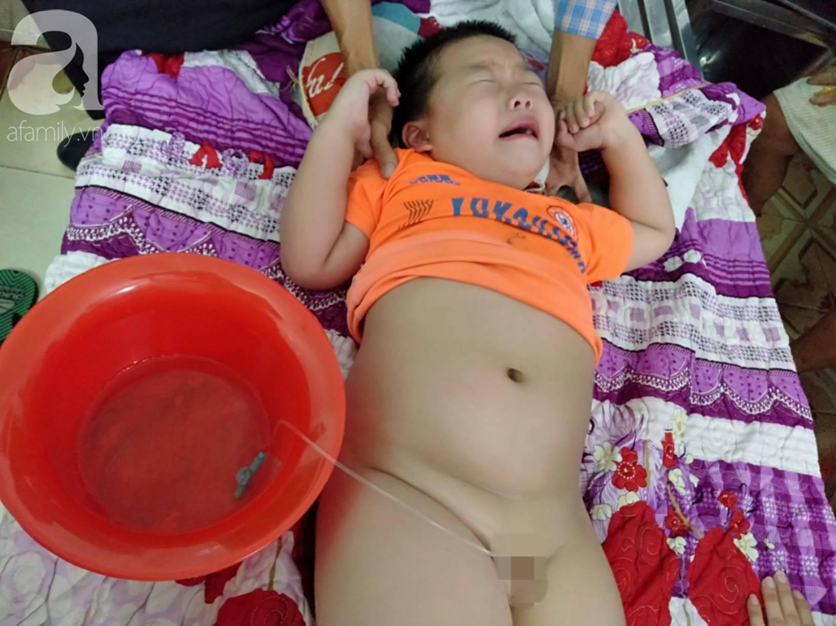 Vợ chồng nghèo cầu cứu 100 triệu đồng cho con trai 7 tuổi mắc bệnh thận có cơ hội phẫu thuật, giành lại sự sống-1