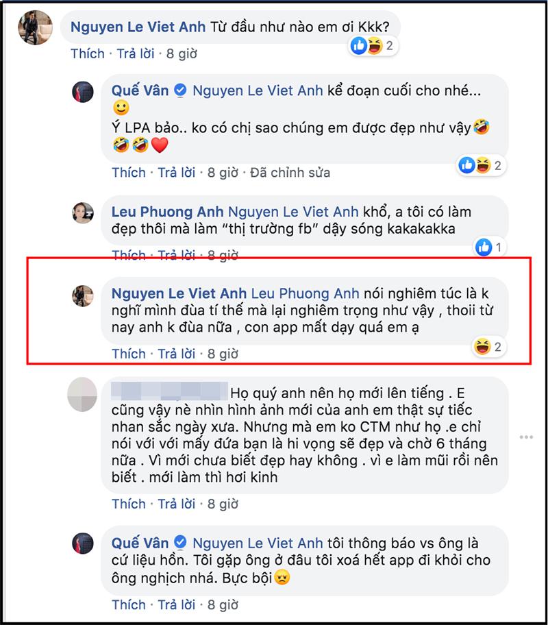 Cuối cùng Việt Anh cũng chịu lên tiếng giải thích lý do thẩm mỹ khiến gương mặt khác hẳn, phủ nhận chuyện hạ gò má, mở hốc mắt-1