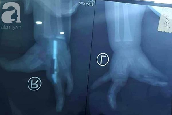 TP.HCM: Mẹ nghẹn ngào khi con trai 2 tuổi mắc hội chứng tôm hùm vô cùng hiếm gặp khiến tay chân dị dạng-2
