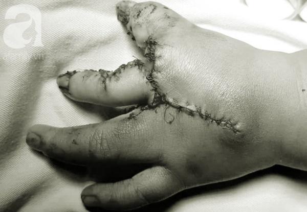 TP.HCM: Mẹ nghẹn ngào khi con trai 2 tuổi mắc hội chứng tôm hùm vô cùng hiếm gặp khiến tay chân dị dạng-4