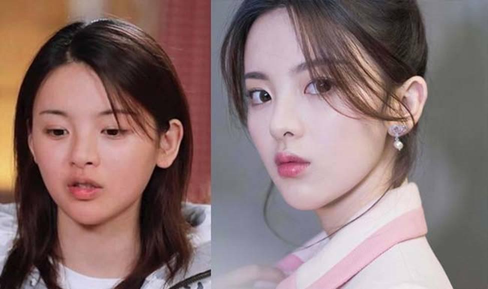 Cô thôn nữ 21 tuổi được phong đẹp nhất Trung Quốc bị ném đá vì nghi mặt nhân tạo-15