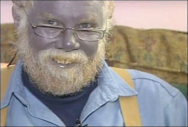 Câu chuyện ly kỳ về gia tộc người ngoài hành tinh có thật 100% ở Mỹ: Cả gia đình màu xanh da trời và lời nguyền đeo bám hàng trăm năm-5