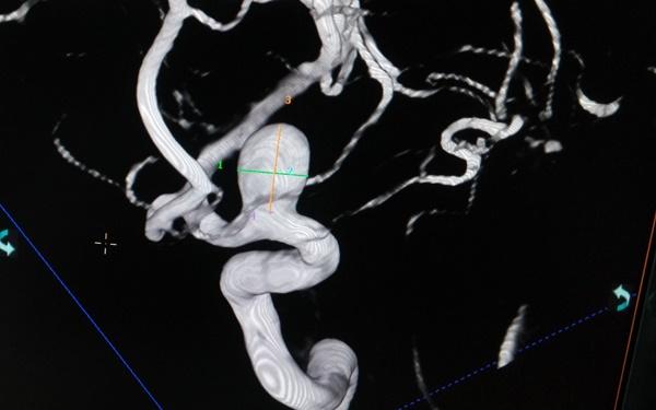 Đột ngột đau đầu, thiếu nữ 18 rơi vào hôn mê do 'kẻ giết người' thứ 3 ở Việt Nam-3