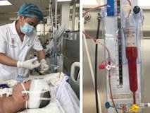 Đột ngột đau đầu, thiếu nữ 18 rơi vào hôn mê do 'kẻ giết người' thứ 3 ở Việt Nam