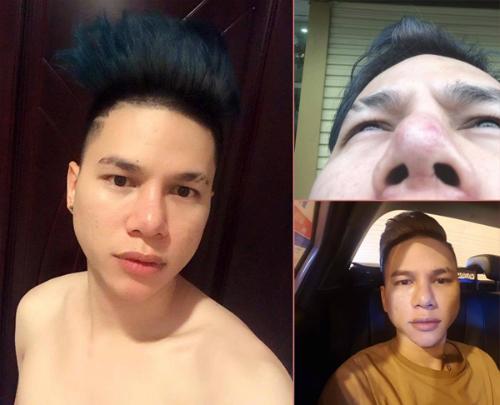Sao nam Việt phẫu thuật thẩm mỹ: Người gây tiếc nuối, kẻ lột xác khó tin-9