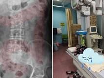 Bé gái 11 tuổi nhập viện cấp cứu vì đau dạ dày, bác sĩ chỉ đích danh thủ phạm là 1 sở thích tai hại của rất nhiều bé